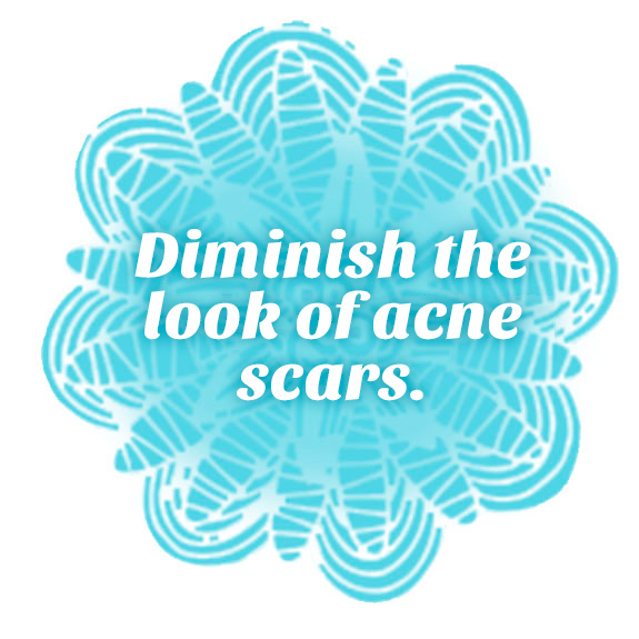 Diminish the look of acne scars